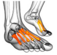足 の 甲 骨折 全治